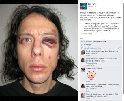 Dan Parks egen beskrivelse af overfaldet, postet på Facebook